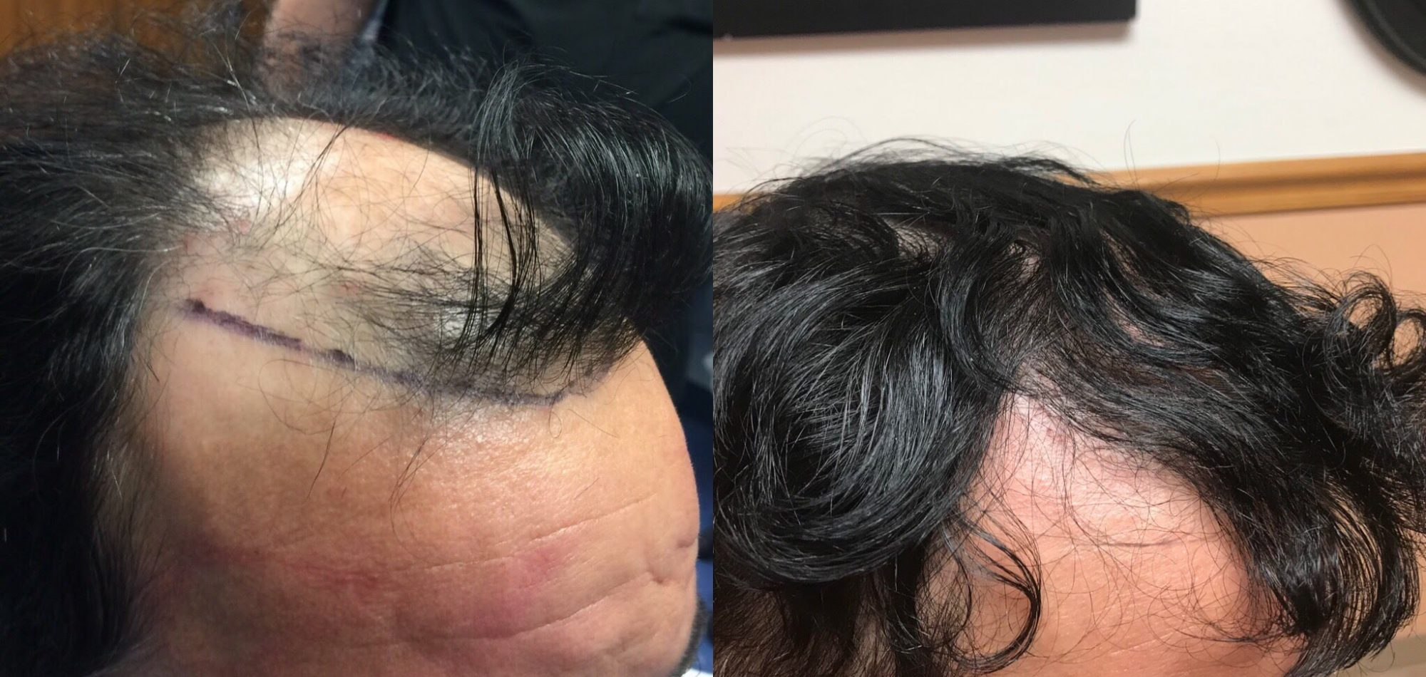 fut-before-and-after-4000-grafts