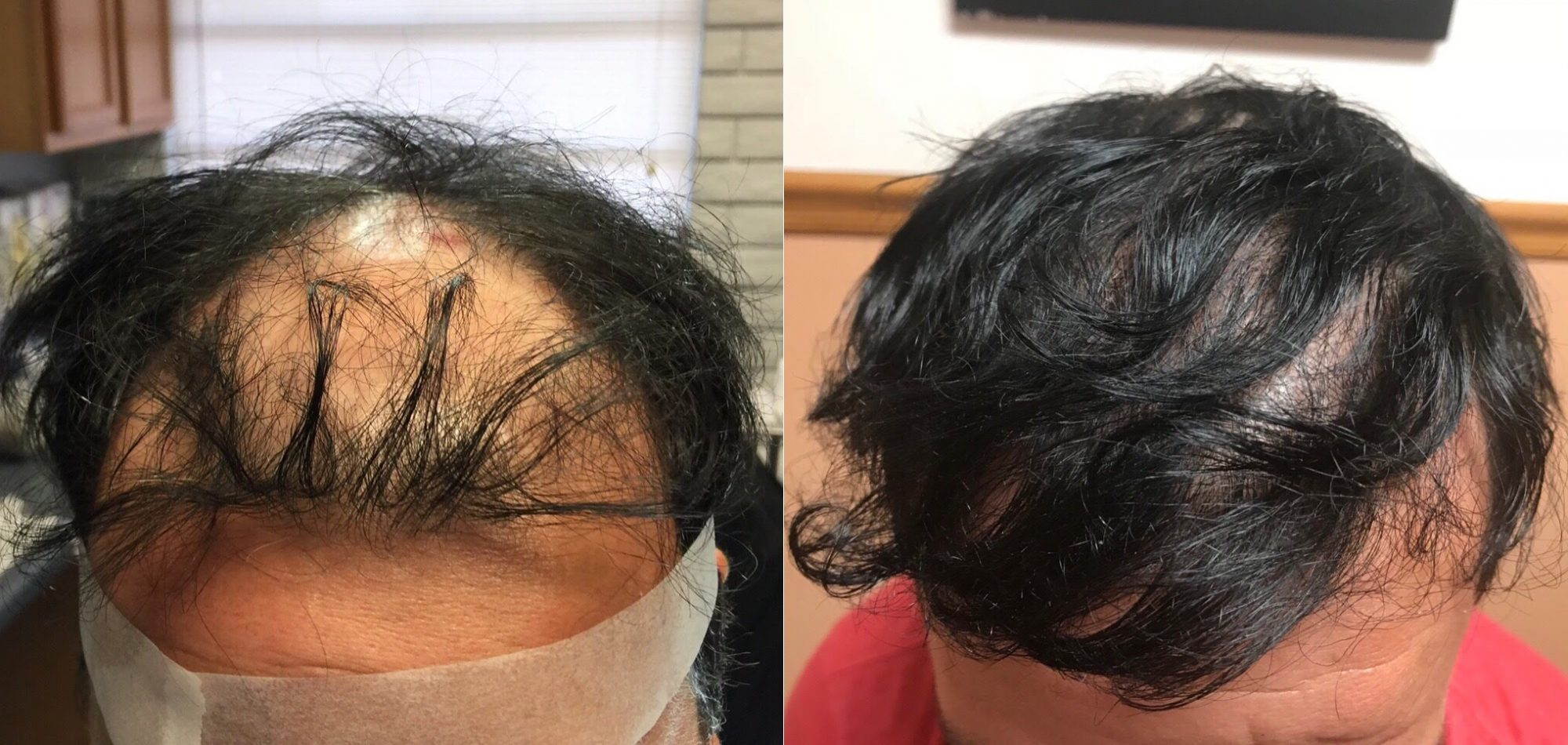 fut-hair-transplant-4000-grafts